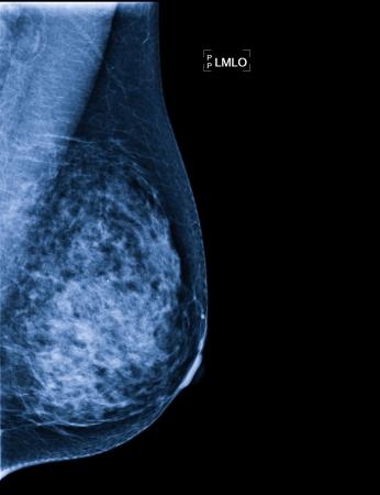 Rayos X de cáncer de mama Foto de archivo - 23019042