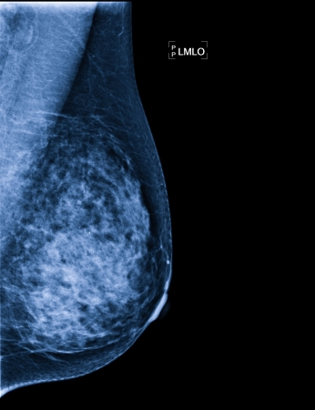 X-ray of Breast Cancer