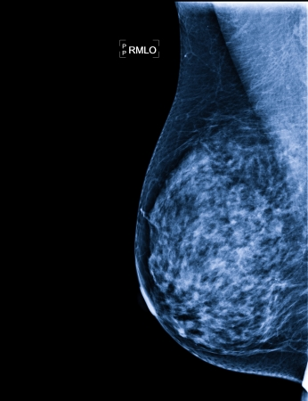 X-ray of Breast Cancer photo