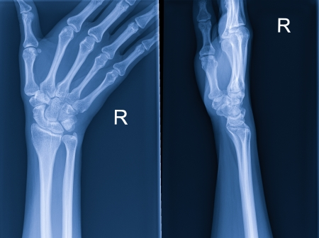 X-ray of hand