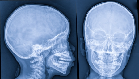 X-ray of head,skull x-rays image photo