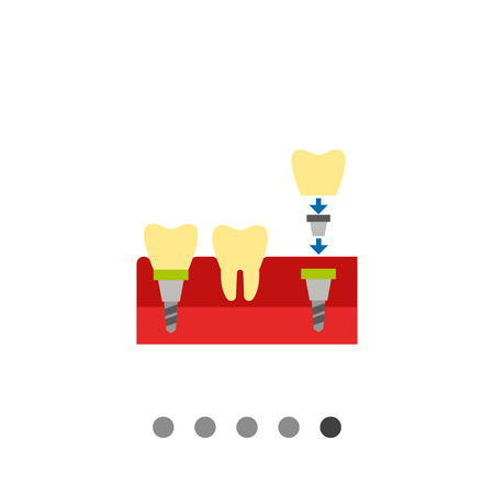 anchored: Tooth implant flat icon. Multicolored vector illustration of dental implant being anchored to jaw