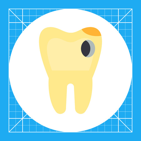 Carious tooth with hole. Caries, disease, dentist. Dental care concept. Can be used for topics like stomatology, health, hygiene Illustration
