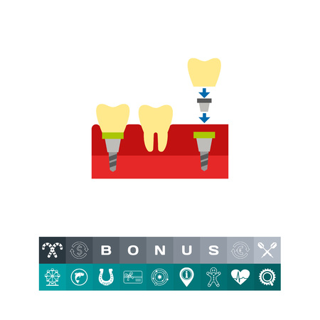 Tooth Implant Vector Icon