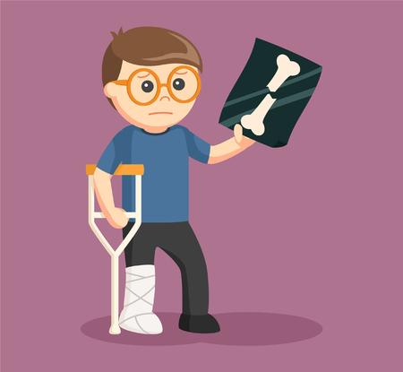 injuries: man leg injury and showing his xray Illustration