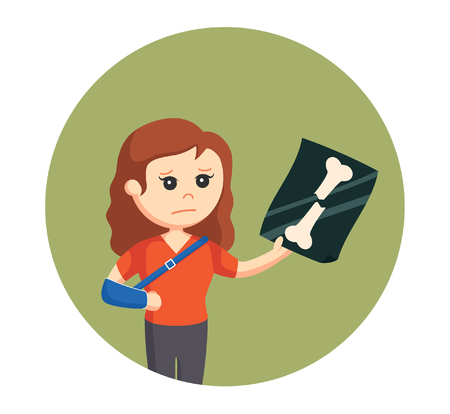 broken arm: woman with broken arm Illustration