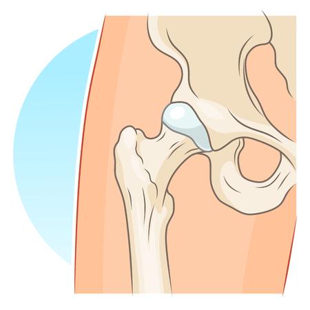 alfa: Hip joint illustration