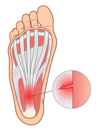 Plantar fasciitis medical vector illustration.