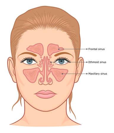 Sinuses anatomy medical diagram.