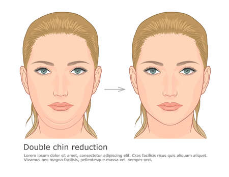Double chin fat loss front view