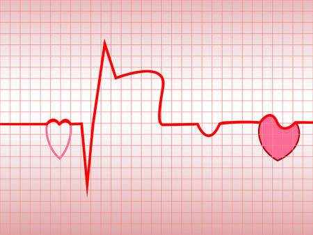 Complex of ECG, acute myocardial infarction, illustration, vector, with the two symbols of the heart Illustration