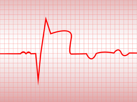 infarction: Complex of ECG on thermal paper, acute myocardial infarction, illustration, vector