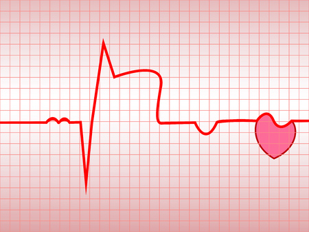 Complex of ECG on thermal paper, acute myocardial infarction, illustration, vector Stock Vector - 8334640