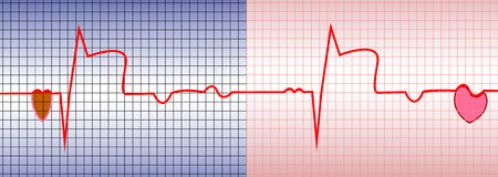 infarction: ECG, acute myocardial infarction, illustration, vector, with two characters of the heart