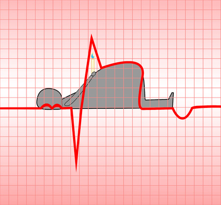 ECG, akute, Myokardinfarkt, Myokard, Illustration, Vektor, Übergewicht, die den Tod eines Menschen anziehen