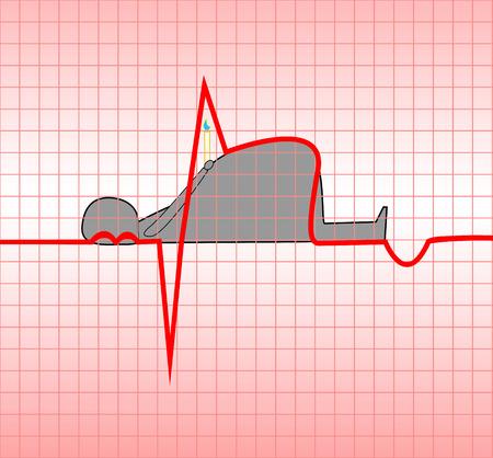 obesidad: ECG, miocardio agudo, mioc�rdica, ilustraci�n, vectorial, obesidad, que atraen a la muerte de un hombre Vectores