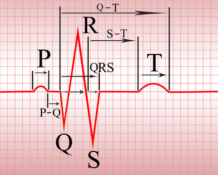 Complex of ECG on thermal paper, with the notation of teeth and spacing Illustration