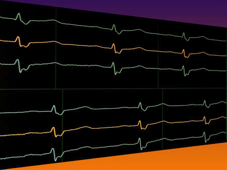 stress testing: Bright lines electrocardiogram on the monitor
