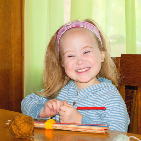 The child smiling, syndrome, down syndrome