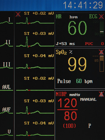 heart monitor: heart monitor screen on which the normal indications of a healthy person