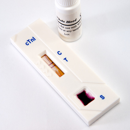 myocardium: Test, troponin, on heart attack of the myocardium for diagnostics in laboratory Stock Photo