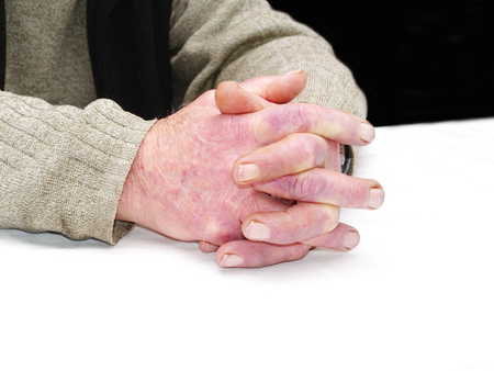 gerontology: Closeup of the wrinkled hands of an old caucasian man, wearing a green sweater Stock Photo