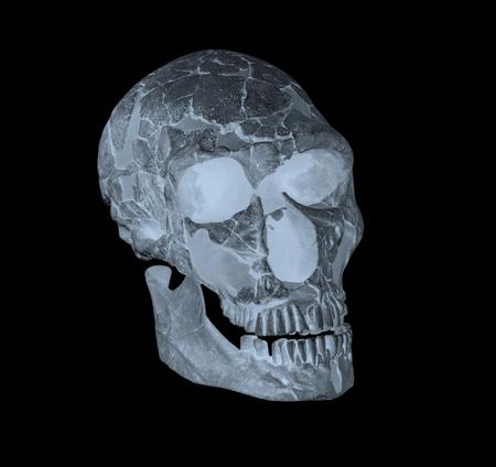 Side face skull x-ray image Stock Photo