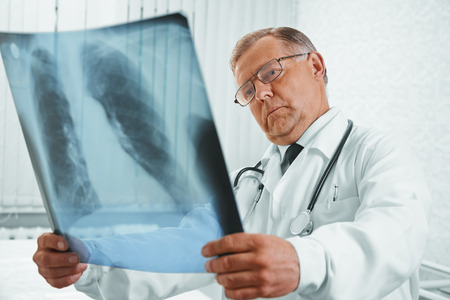 Senior man doctor examines x-ray image of lungs in a hospital