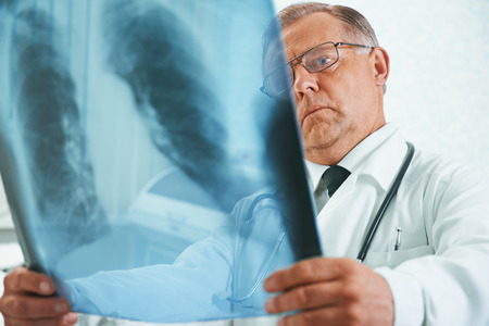 pneumonia: Older man doctor is analyzing x-ray image of lungs in a clinic