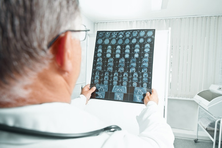 Older man doctor examines MRI image of human head in hospital photo