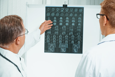 Senior doctor examines MRI image of human head. Senior doctor teaches young doctor photo