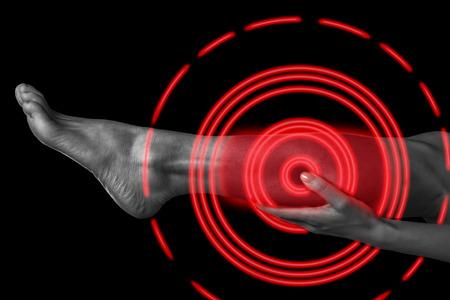女性は彼女の脚、女性のふくらはぎの筋肉、モノクロ画像、赤い色の痛みの領域の痛みを保持します。
