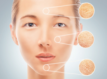 Portrait of young woman with parts of dry skin, concept of skincare Standard-Bild