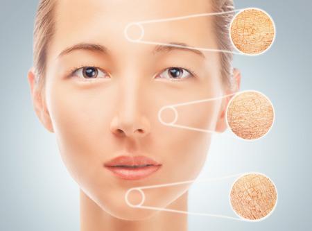 Portret van een jonge vrouw met delen van een droge huid, concept van huidverzorging Stockfoto