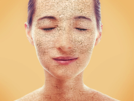 Portrait of young woman with very dry skin