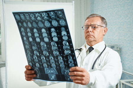 Senior man doctor examines MRI image of human head in hospital photo