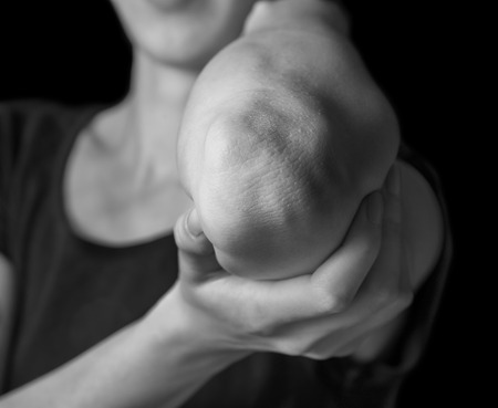 Woman holds her elbow joint, acute pain in the elbow, black and white image photo
