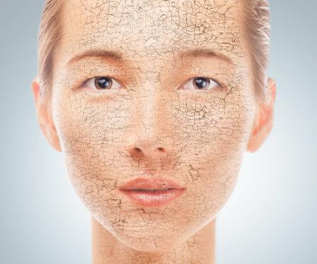 Portrait der jungen schönen Frau mit Problem trockene Haut