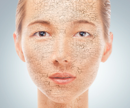 Portrait of young beautiful woman with problem dry skin