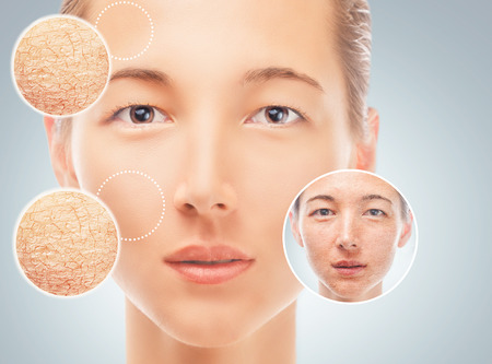 dry skin: Portrait of woman before and after cosmetic procedure, improvement of facial skin, concept of skincare
