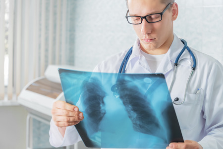 Male doctor looks at x-ray picture of lungs in a clinic