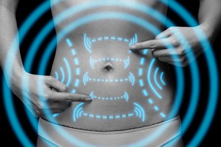 piel humana: Mujer irreconocible se�ala en el abdomen con flechas, imagen monocrom�tica. La p�rdida de grasa y el concepto de la liposucci�n Foto de archivo