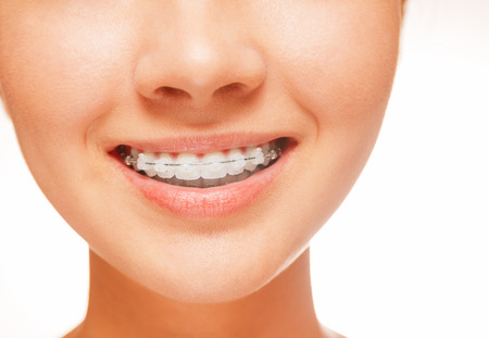 Woman smile: teeth with braces, dental care concept, front view Standard-Bild