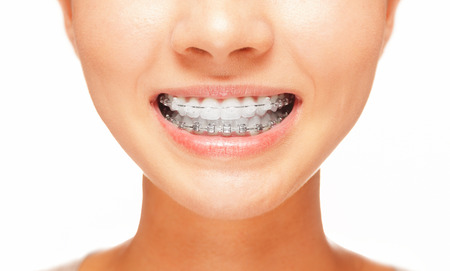 front teeth: Female smile: teeth with braces, dental care concept, front view