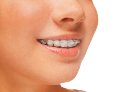 Woman smile: teeth with braces, dental care concept, side view