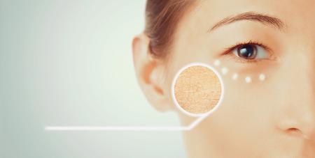 piel humana: Retrato de mujer joven con la parte seca de la cara de la piel, belleza y cuidado de la piel concepto