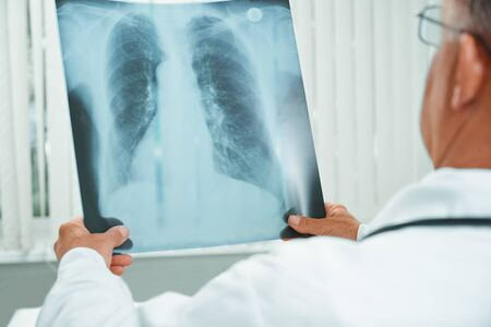 Unrecognizable older man doctor examines x-ray image of lungs in a hospital