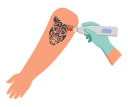 Tattoo removal from skin hand.Vector flat illustration. 向量圖像