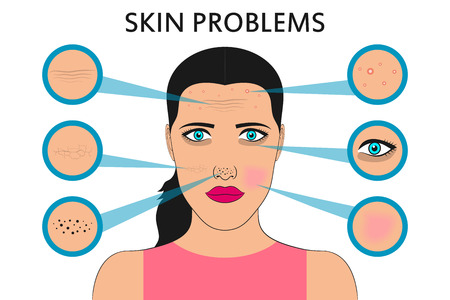 Female face skin problems. Acne and pimples, black spots, redness, dryness, circles under the eyes and wrinkles. Vector illustration for cosmetic brochure or banner, poster.