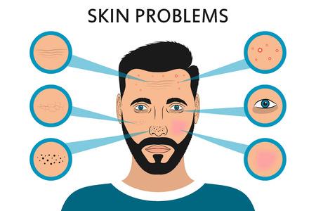 Hautprobleme im männlichen Gesicht. Akne und Pickel, schwarze Flecken, Rötung, Trockenheit, Ringe unter den Augen und Fältchen. Vektorillustration für kosmetische Broschüre oder Fahne, Plakat.